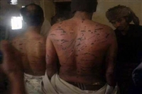 منظمة (رايتس رادار) تطلق تقريرا حقوقيا عن المعتقلين (اليمن: ضحايا خلف القضبان)