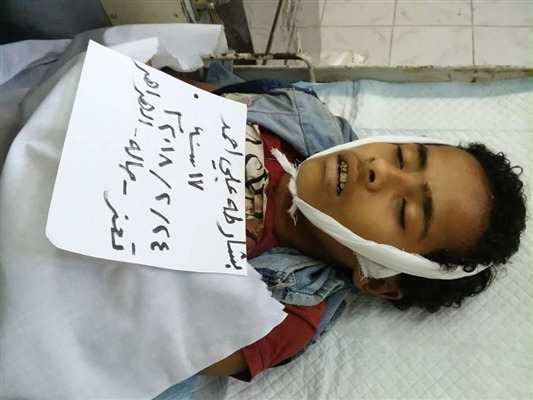 Breaking News: Houthi sniper shoots dead 17 year old boy