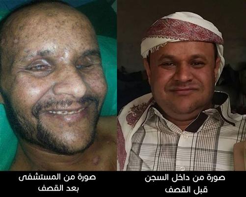 أحمد.. معتقل لدى الحوثيين أصيب في قصف للتحالف وترفض الميليشيا الافراج عنه