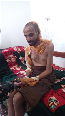 Family of physician who lost memory in Houthi jails move him to Marib for treatment