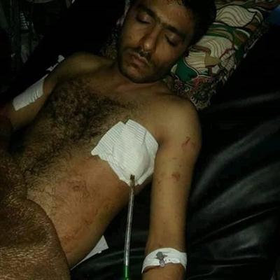 جرحى جراء أحداث شغب داخل  السجن المركزي بمدينة إب