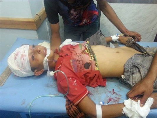 Houthi extremists kill young man, injure child in fresh attacks in Taiz