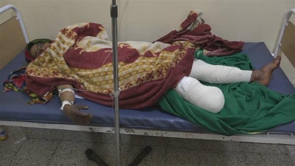 إصابة امرأة بانفجار لغم حوثي غرب تعز